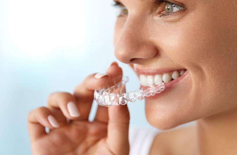 Women Teeth