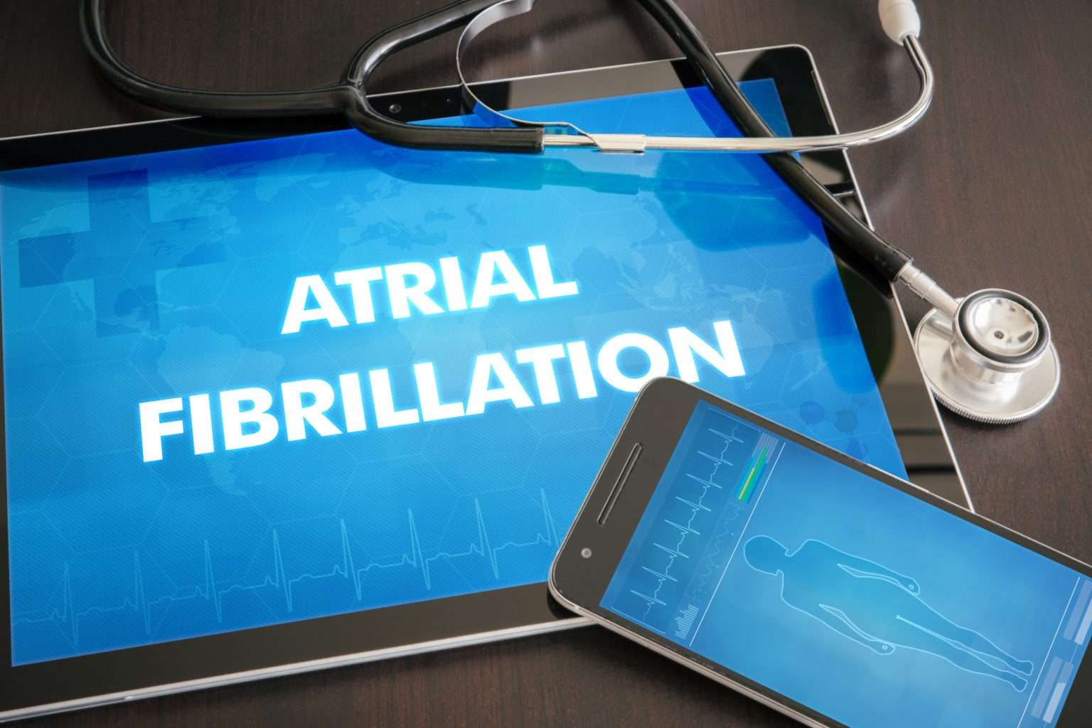 You have Been Diagnosed with Atrial Fibrillation